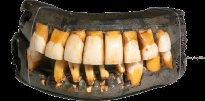 large_dentures-transparent